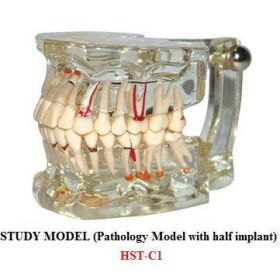 Dental Study Model With Pathology And Half Implant